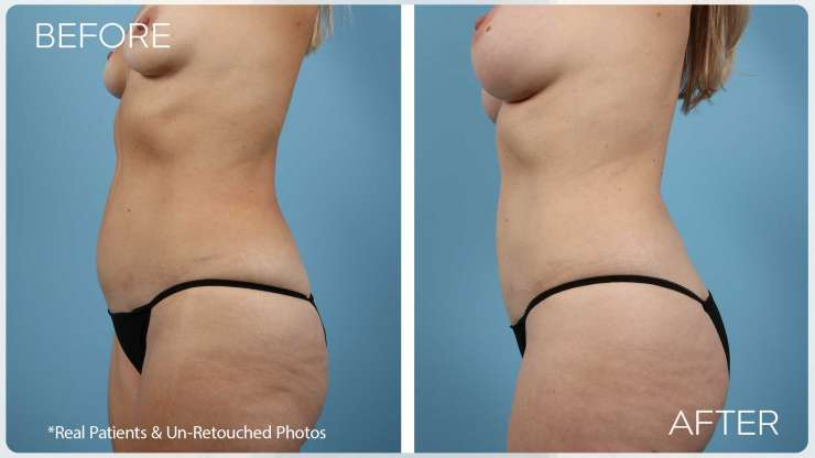 Age 47 Female Liposuction Case 1832 Before/After