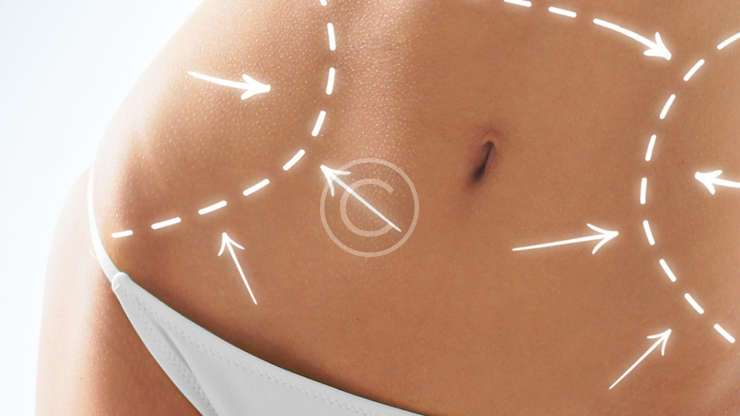With Modern Surgery Techniques, Tummy Tuck Surgery is safer than ever