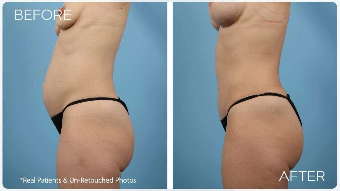 Age 42 Female Mini Abdominoplasty / Breast Lift Case 2045 Before/After