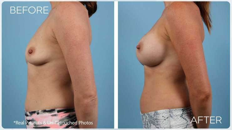 Age 35 Female Breast Augmentation Case 2363 Before/After
