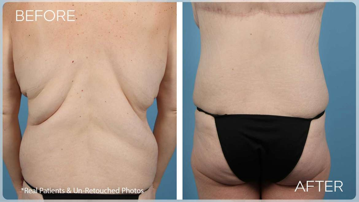 Age 36 Female Upper Back Lift Case 237 Before/After