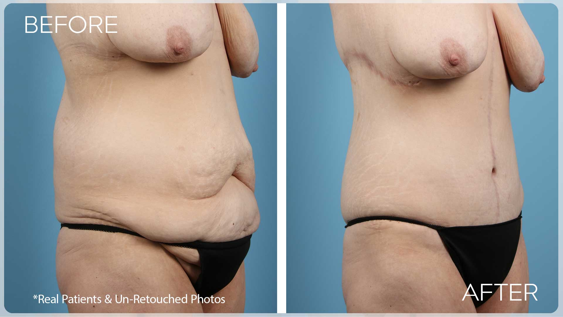 237-Before-After-oblique