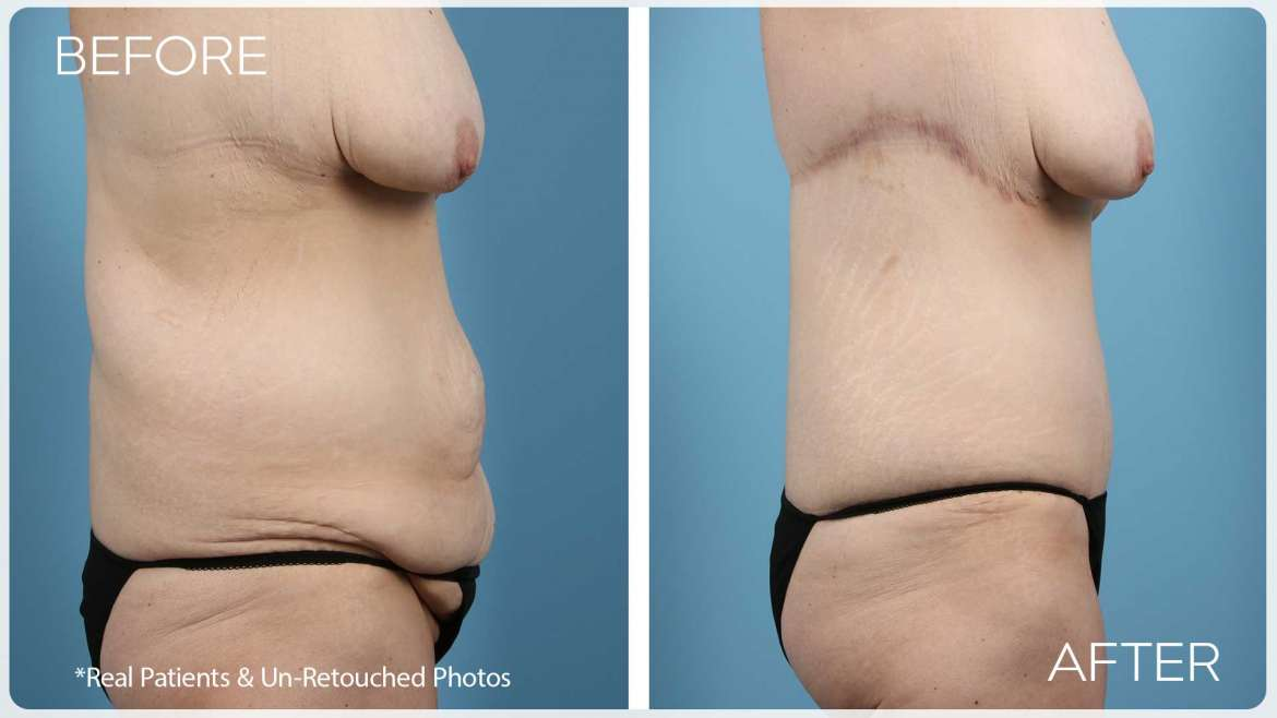 Age 36 Female Abdominoplasty Case 237 Before/After