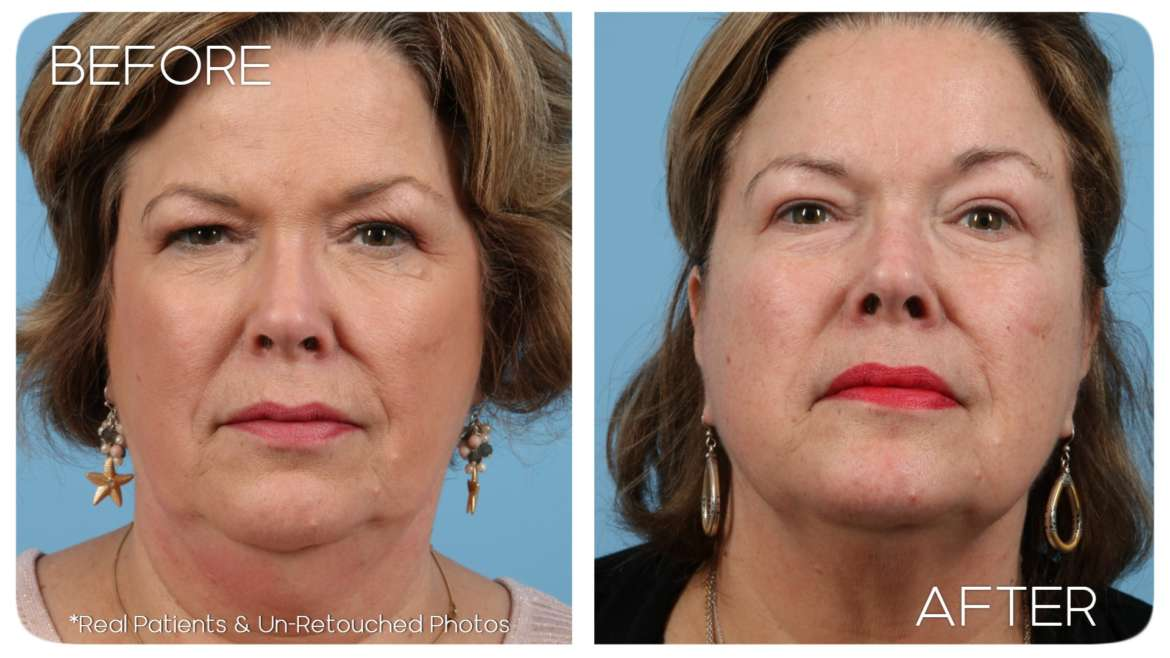 Age 59 Female Blepharoplasty Case 36 Before Afters