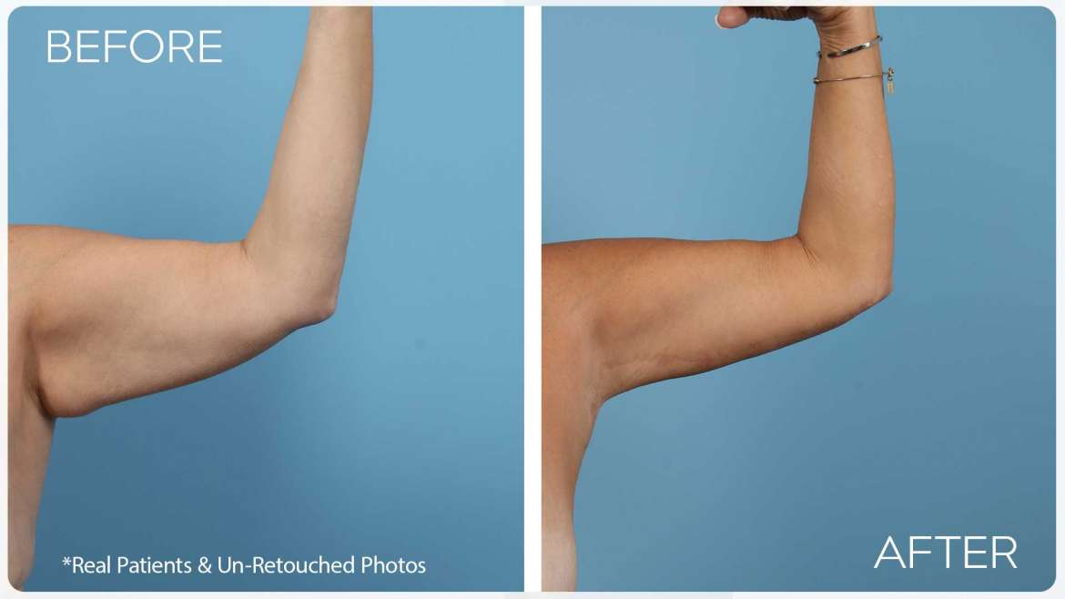 Age 53 Female Arm Lift Case 5 Before/After