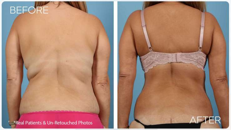 Age 53 Female Back Lift Case 5 Before/After