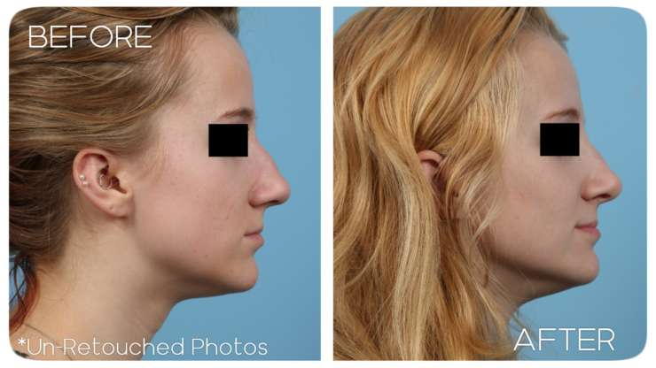Age 20 Rhinoplasty Case 78 Before/After