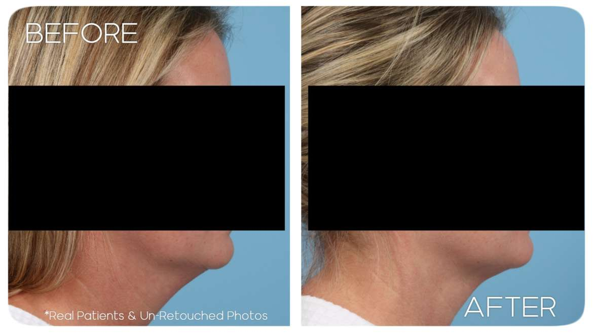 Age 41 Female Liposuction Neck and Submental Area Case 190 Before/After
