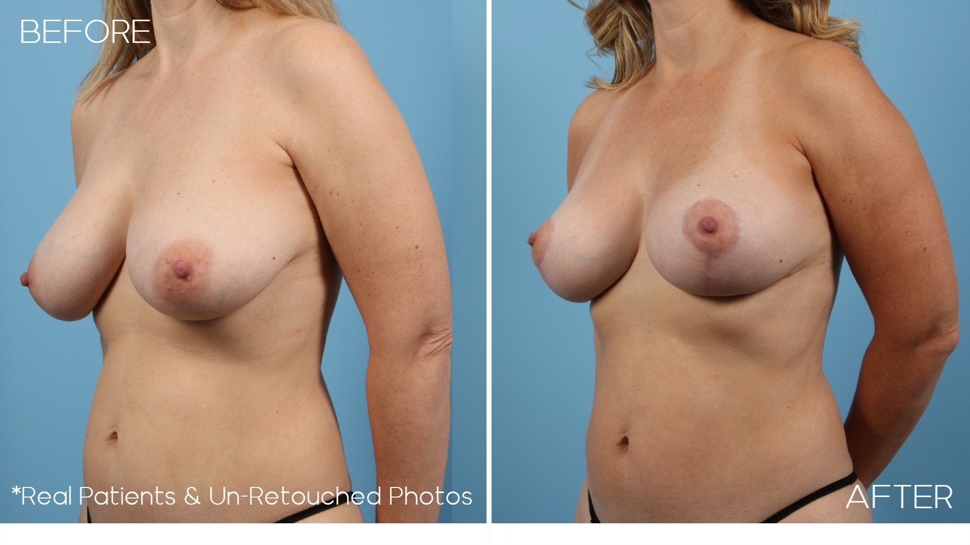 Case-1-Replaced-Before-and-After-Oblique