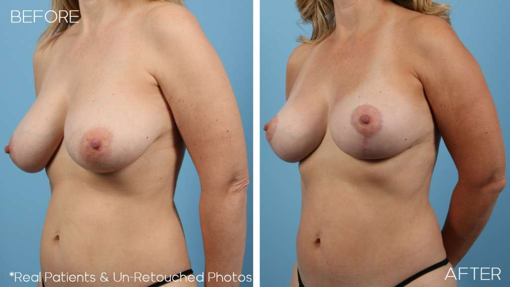 Case-1-Oblique-Before-and-After