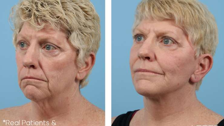 Age 59 Female Facelift, Neck Lift, and Facial Fat Grafting Case 1016 Before/After