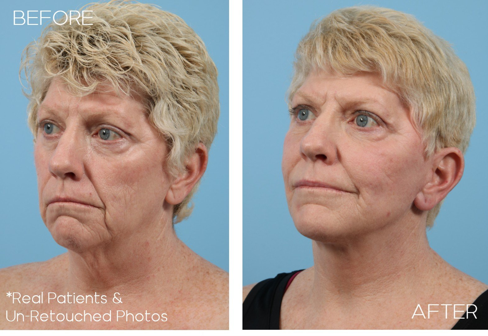 Case-1016-Oblique-Before-and-After