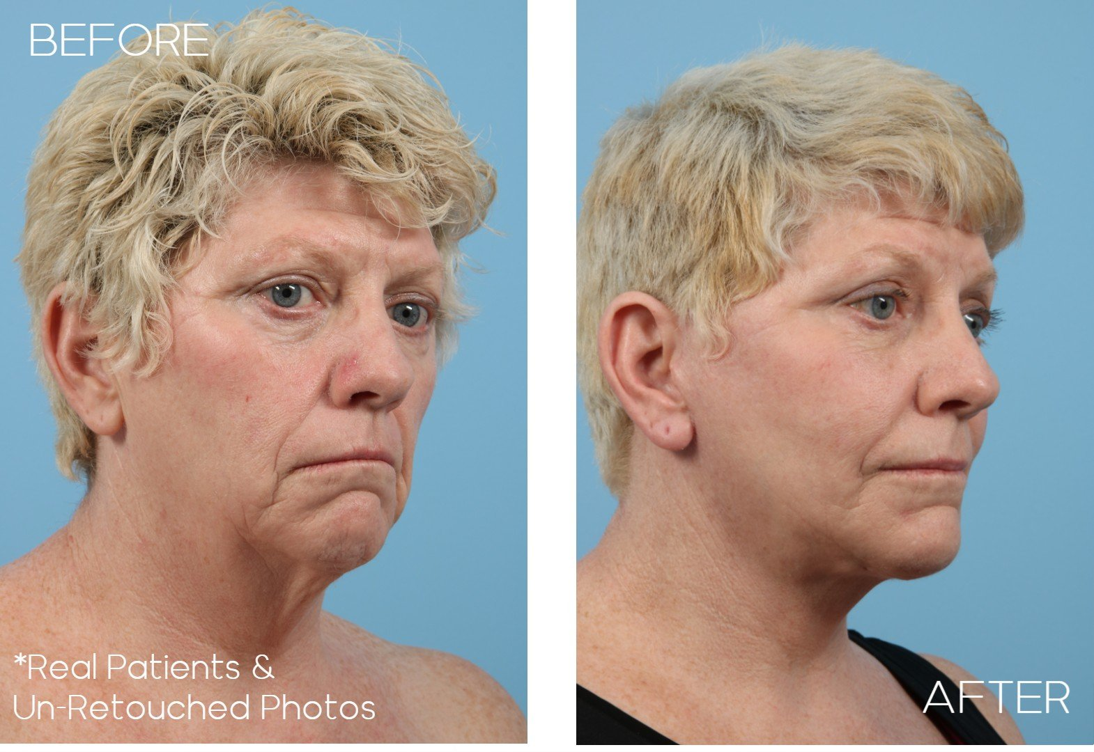 Case-1016-Right-Oblique-Before-and-After