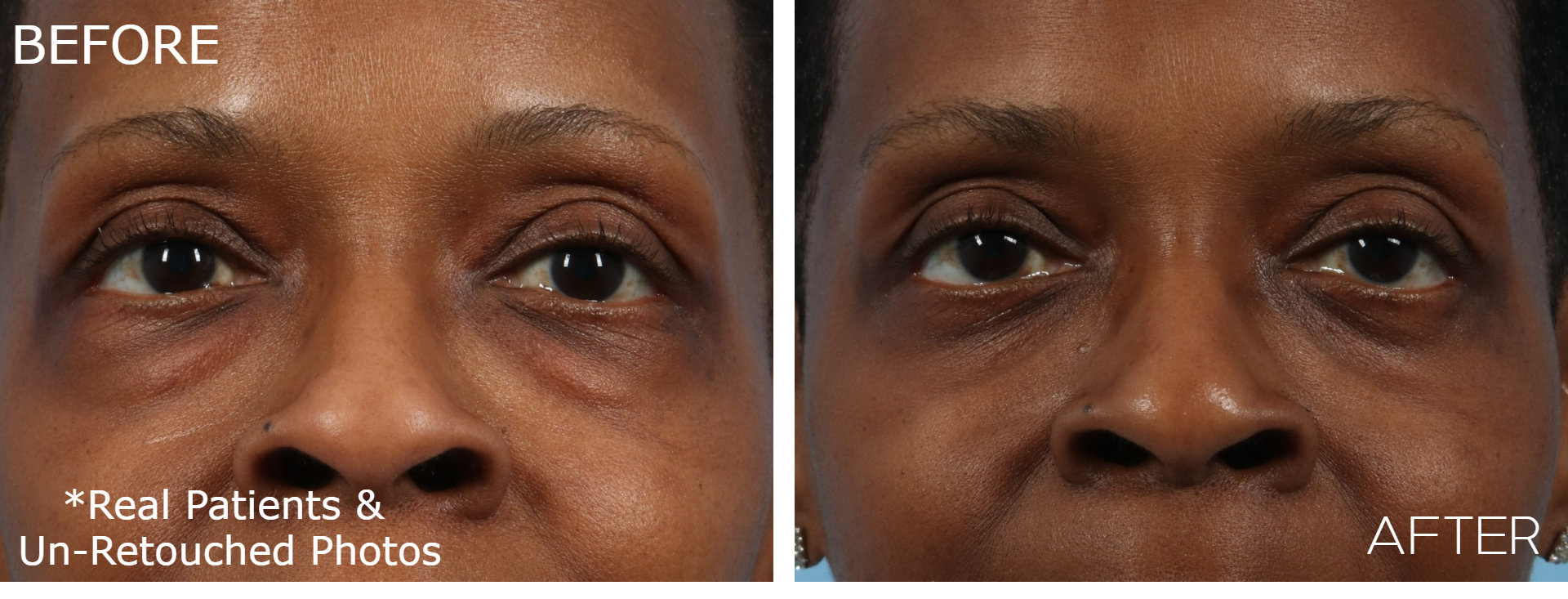 Case-1036-Blepharoplasty-Front-Before-and-After