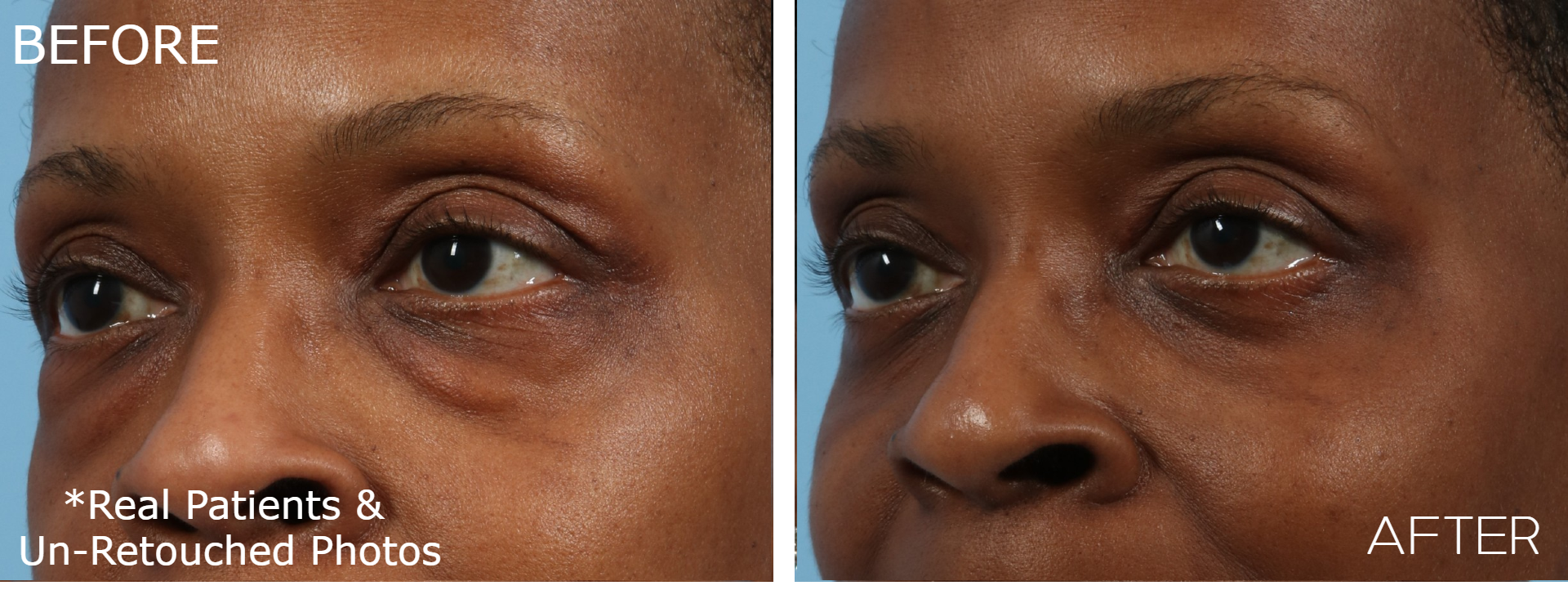 Case-1036-Blepharoplasty-Oblique-Before-and-After