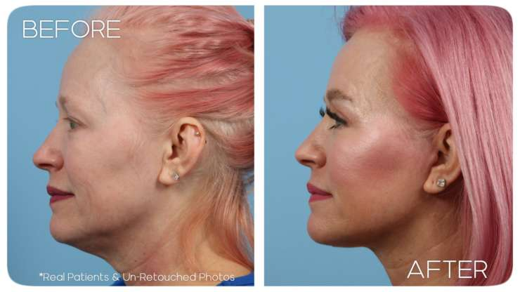 Age 51 Female Facelift, Neck Lift, and Facial Fat Grafting Case 1113 Before/After