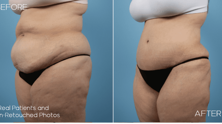 Age 46 Female Abdominoplasty Case 1146 Before/After