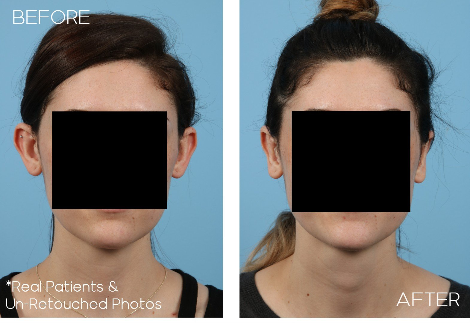 Case-1180-Otoplasty-Front-Before-and-After