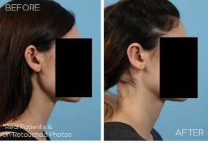 Case-1180-Otoplasty-Side-Before-and-After