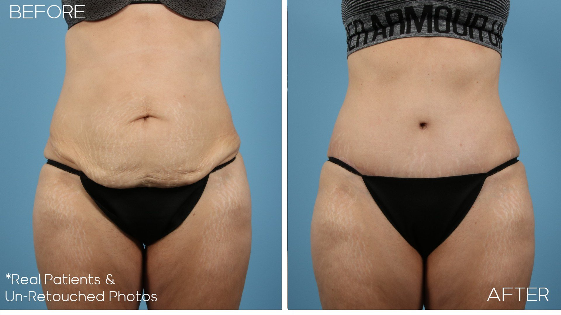 Case-1357-Abdominoplasty-Front-Before-and-After