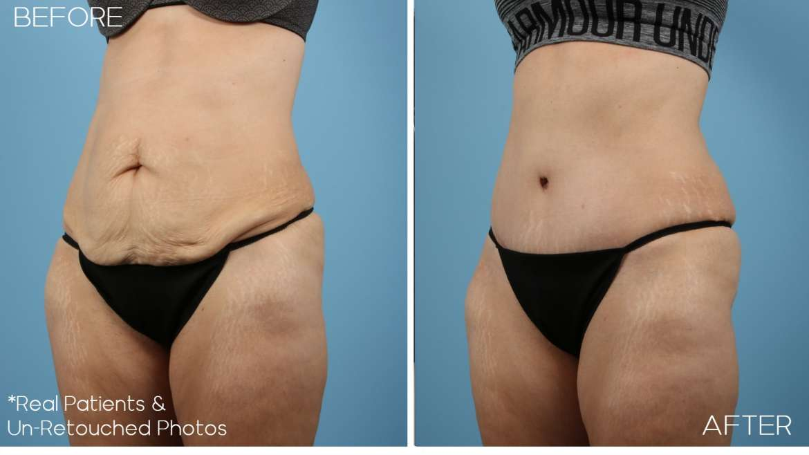 Age 47 Female Abdominoplasty Case 1357 Before/After