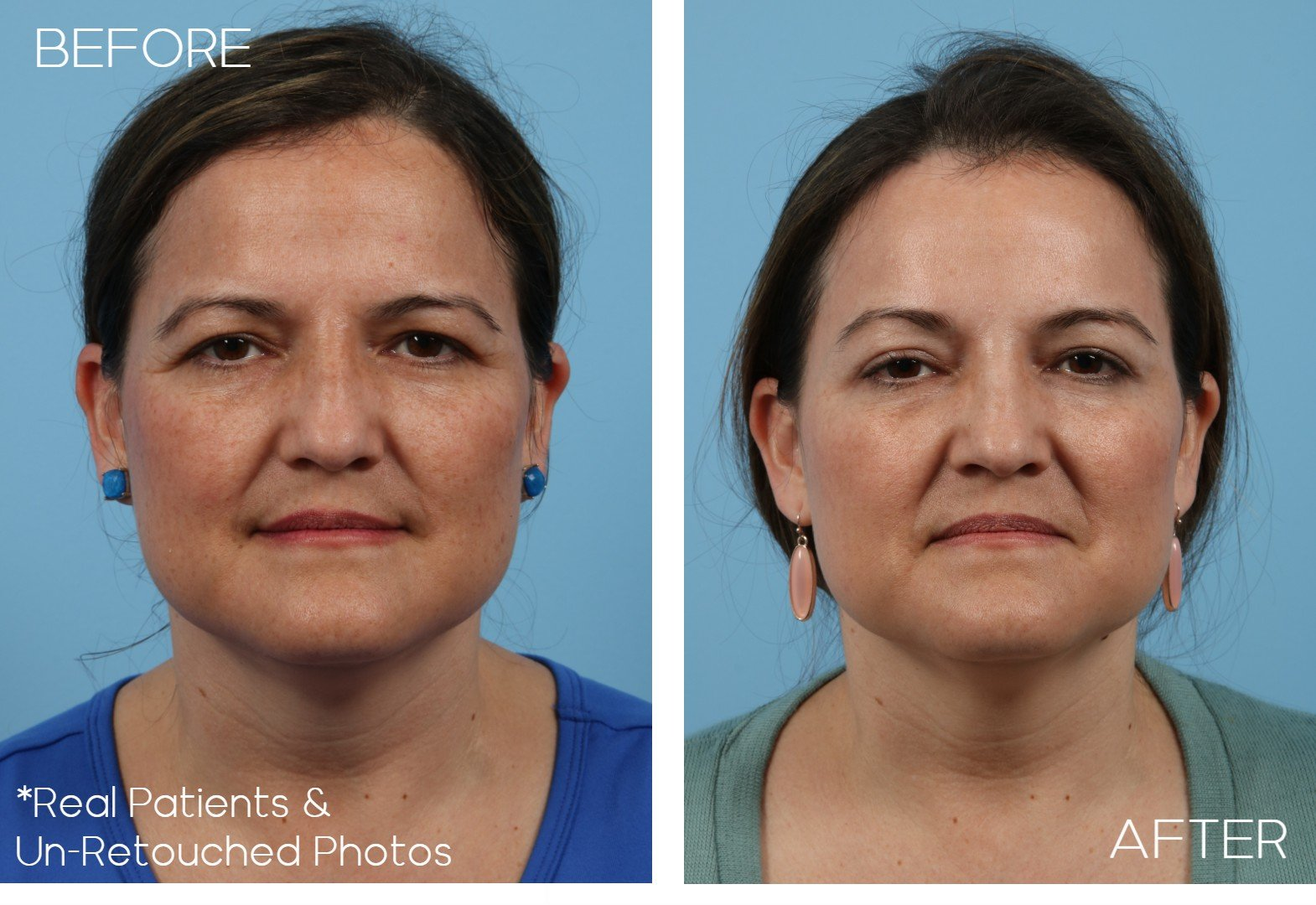 Age-44-blepharoplasty-Case-1457-Before-and-After