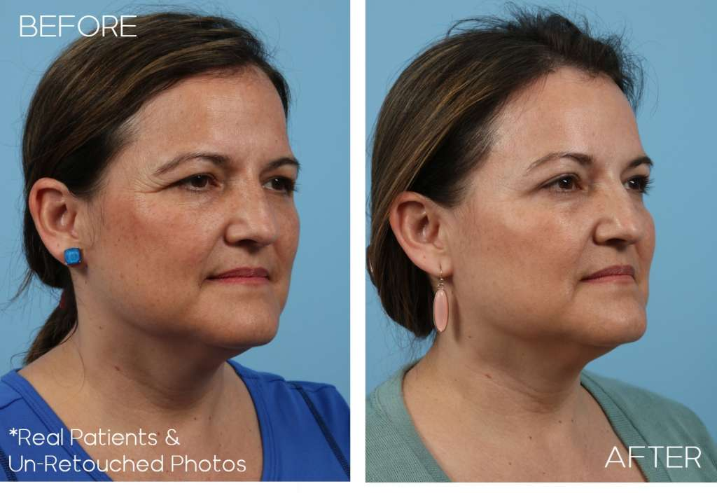 blepharoplasty-Case-1457-Oblique-Before-and-After