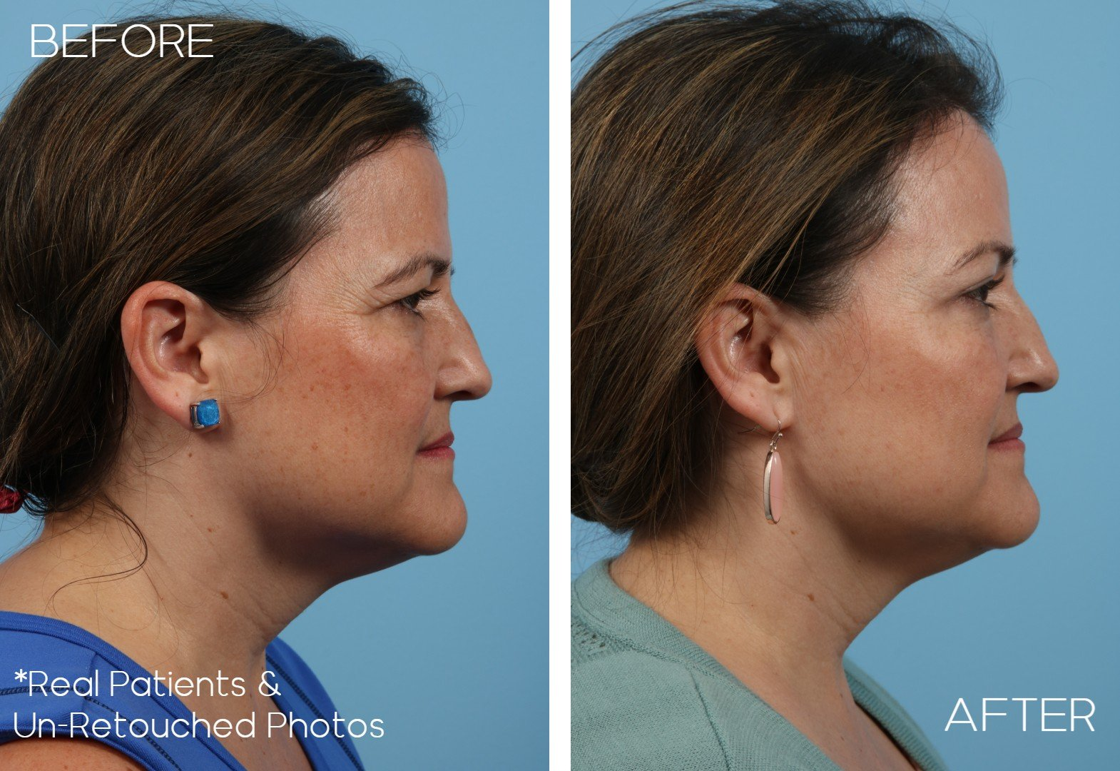 Blepharoplasty-Case-1457-Side-view-Before-and-After