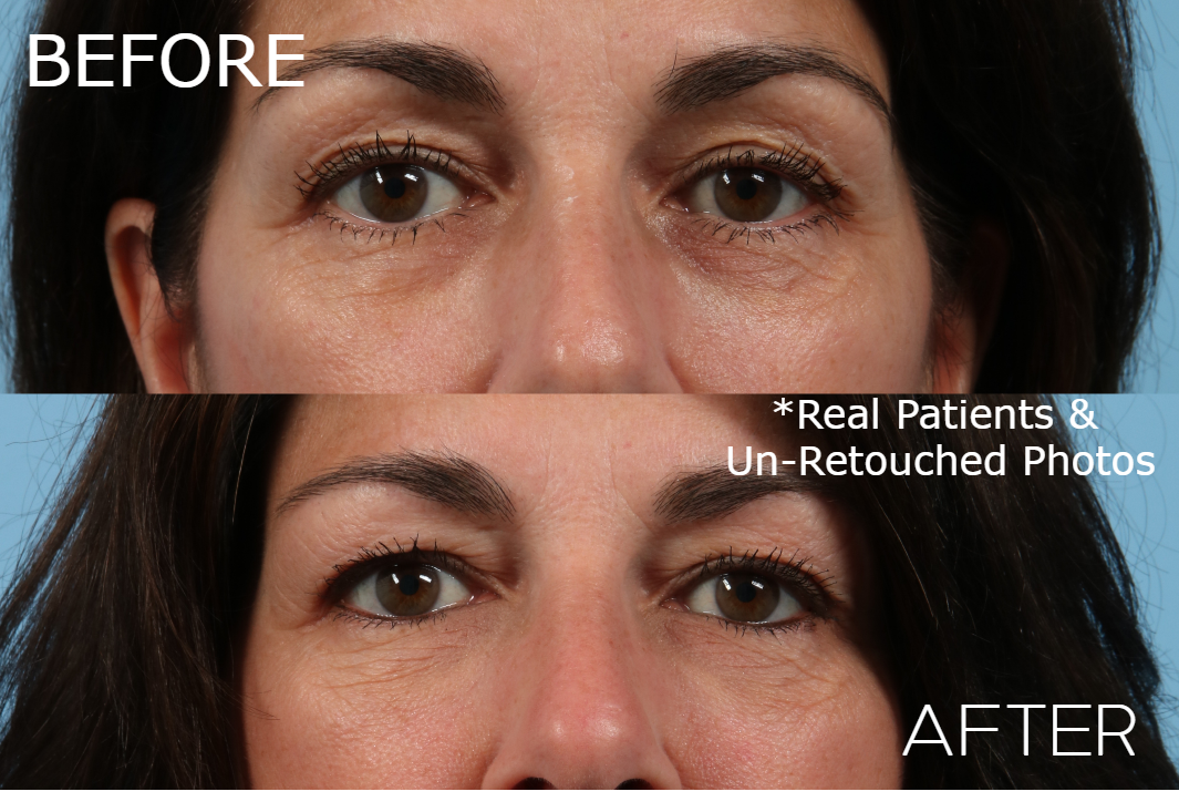 Case-1469-Injectable-Front-Before-and-After