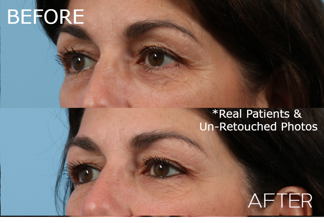 Case-1469-Injectable-Oblique-Before-and-After