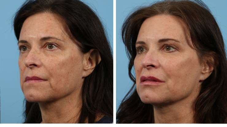Age 60 Female Injectable Case 1518 Before/After