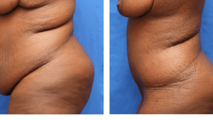 Age 36 Massive Weight Loss Case 177 Before/After