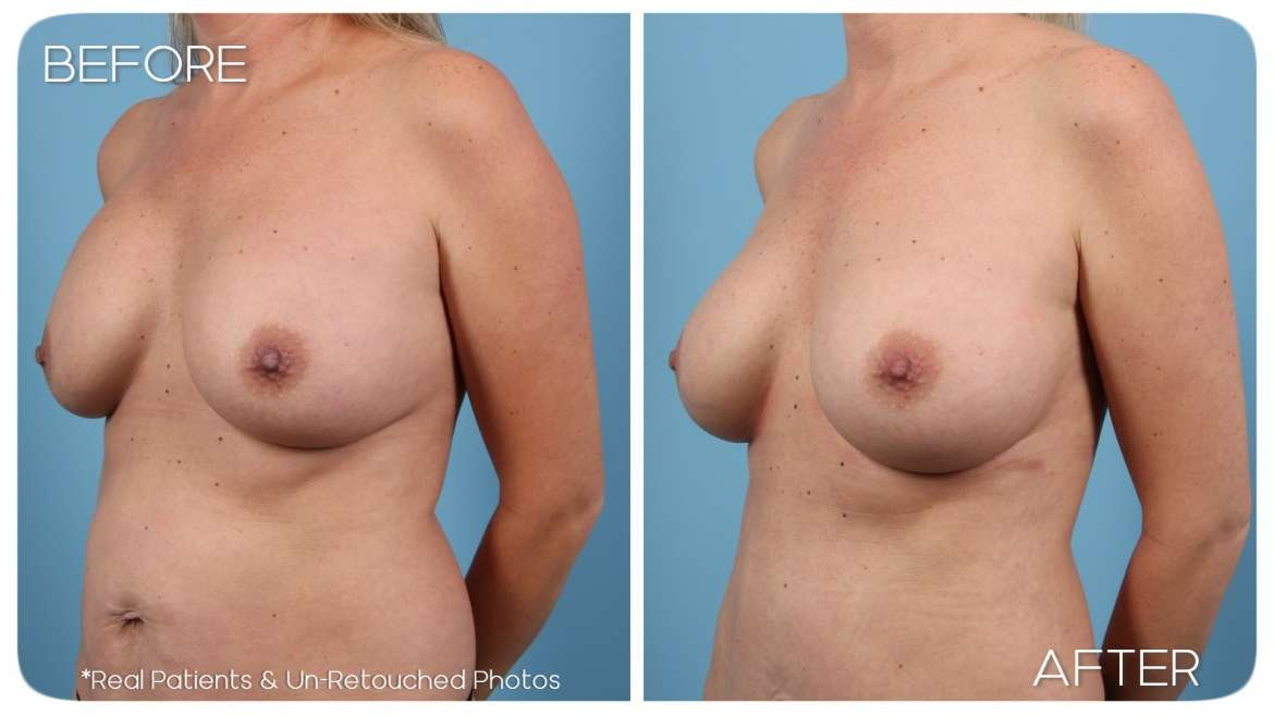 Age 40 Female Breast Augmentation Case 190 Before/After
