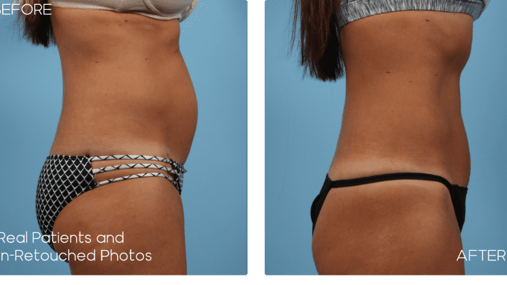 Age 50 Female Mini Tummy Tuck Case 1953 Before/After