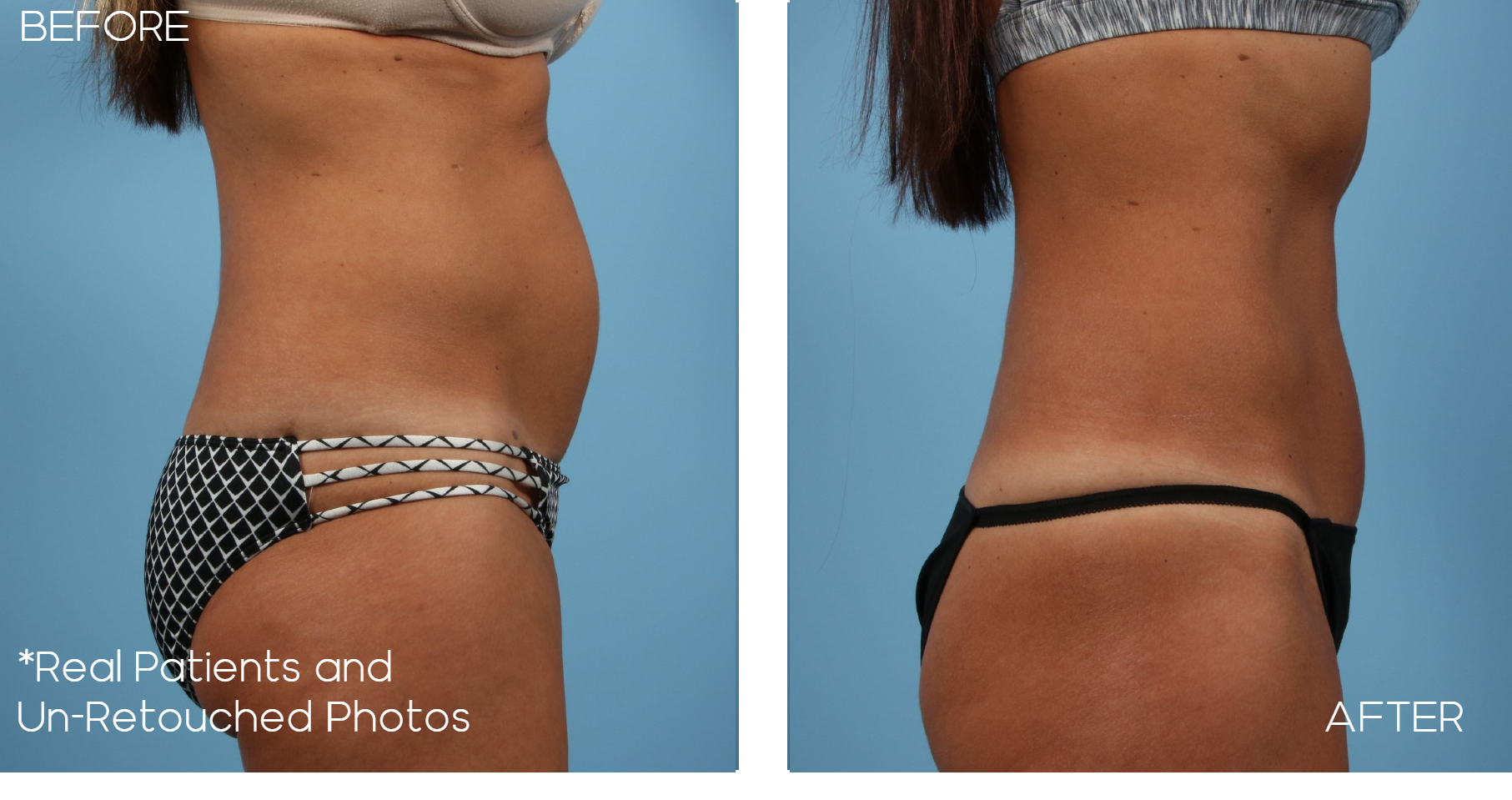 Case-1953-Mini-Tummy-Tuck-Side-Before-and-After