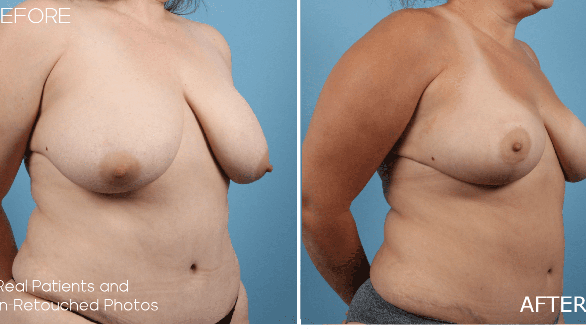 Age 35 Female Mommy Makeover Liposuction/Tummy Tuck Breast Lift Case 459 Before/After