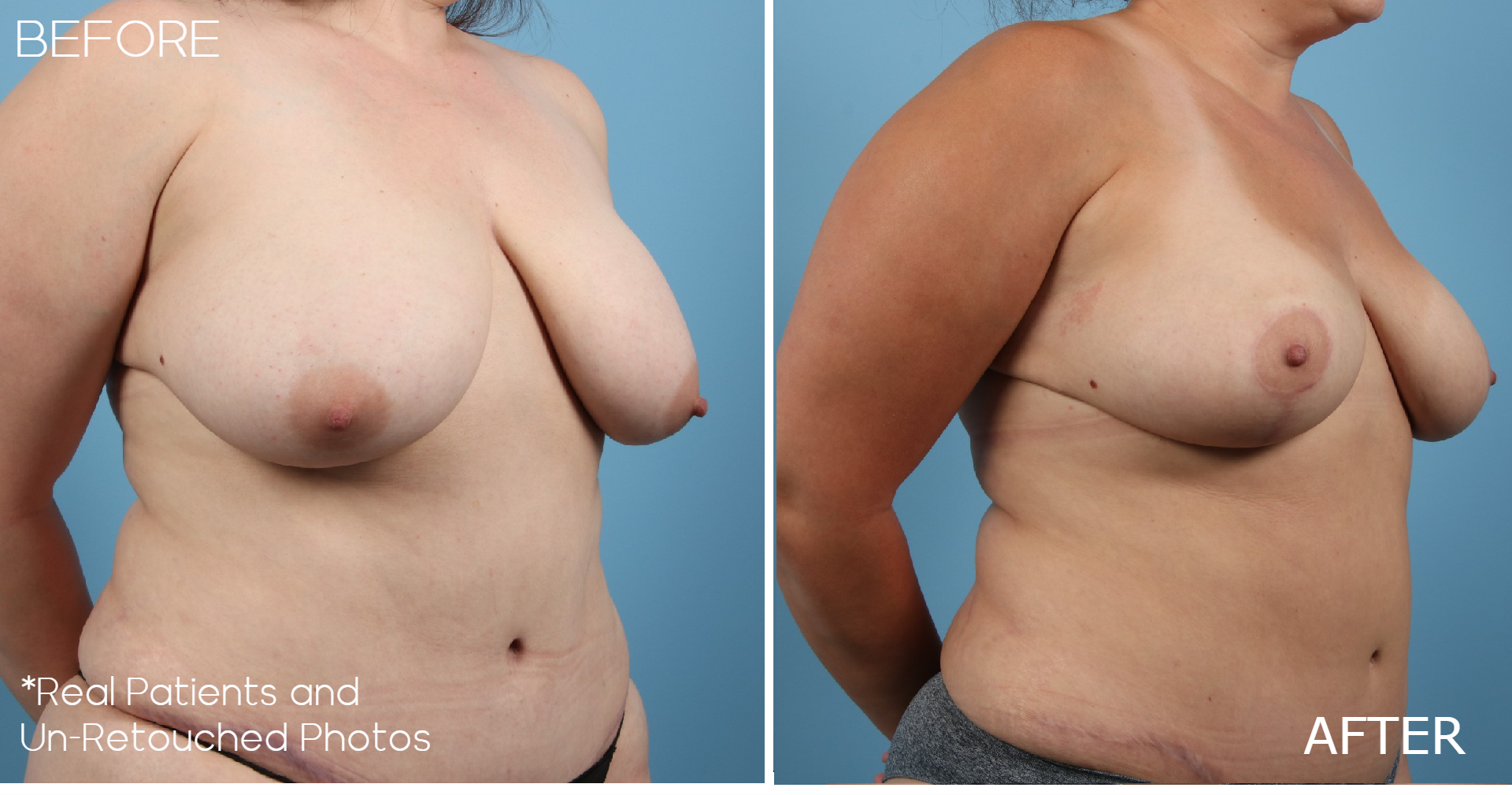 Case-459-Mommy-Makeover-Oblique-Before-and-After