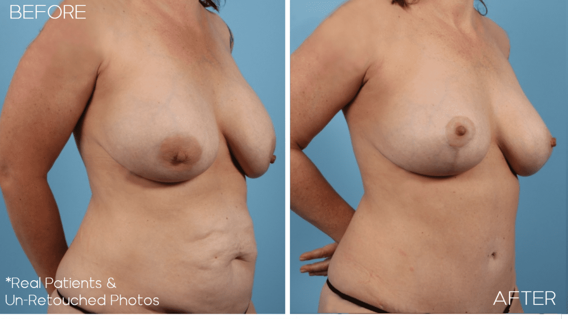 Age 39 Female Mommy Makeover, Tummy Tuck, Liposuction, Breast Lift Case 1958 Before/After