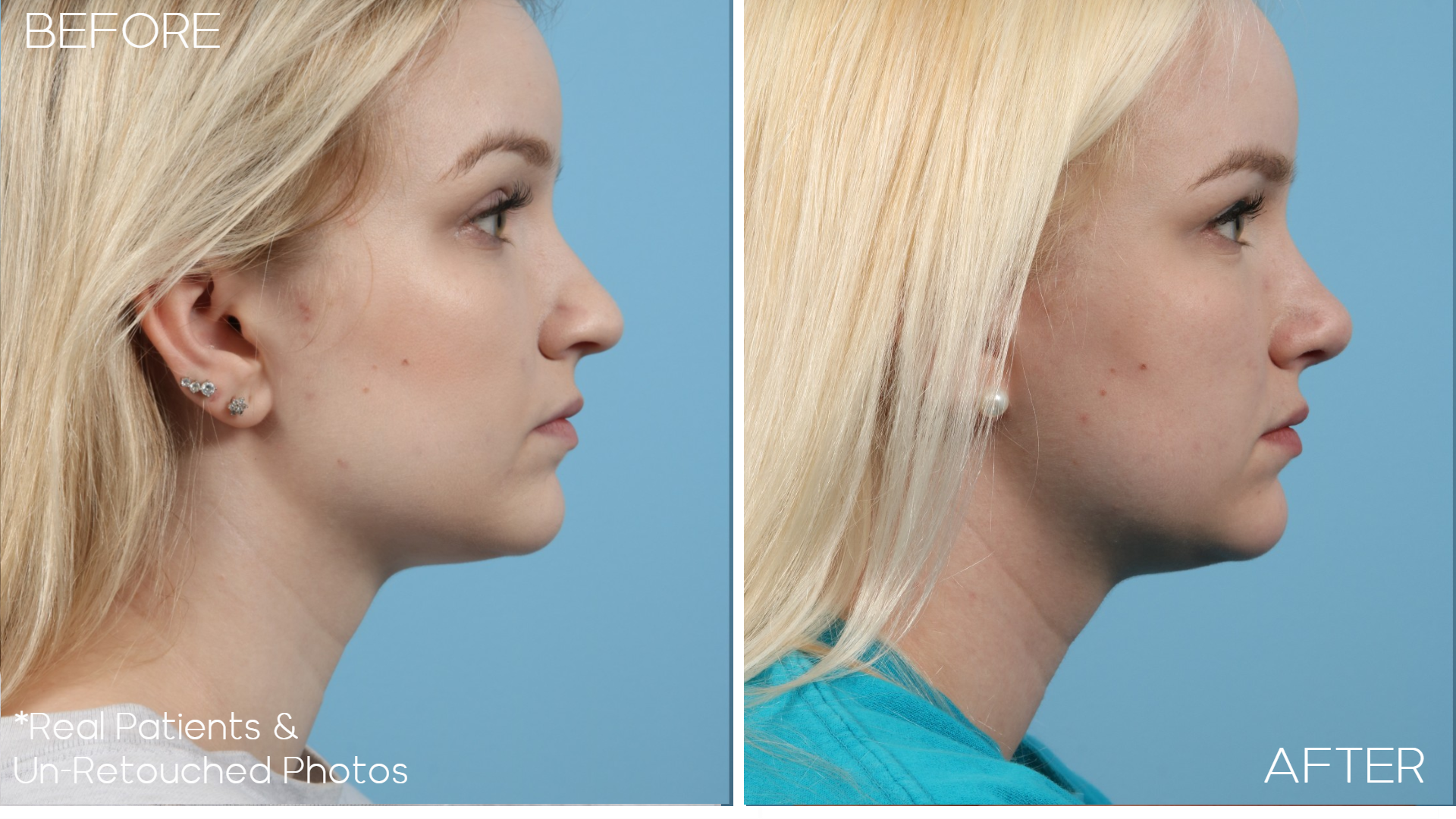 Case-1980-Rhinoplasty-Side-Before-and-After