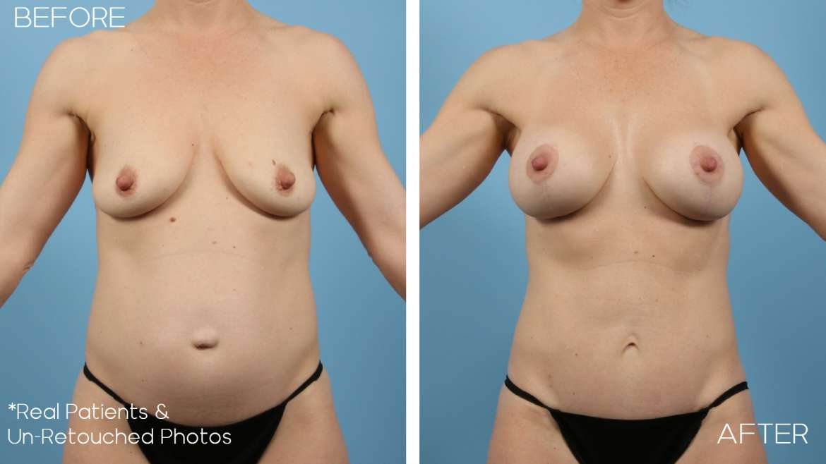 Age 42 Female Mommy Makeover, Mini Abdominoplasty Liposuction Case 2047 Before/After