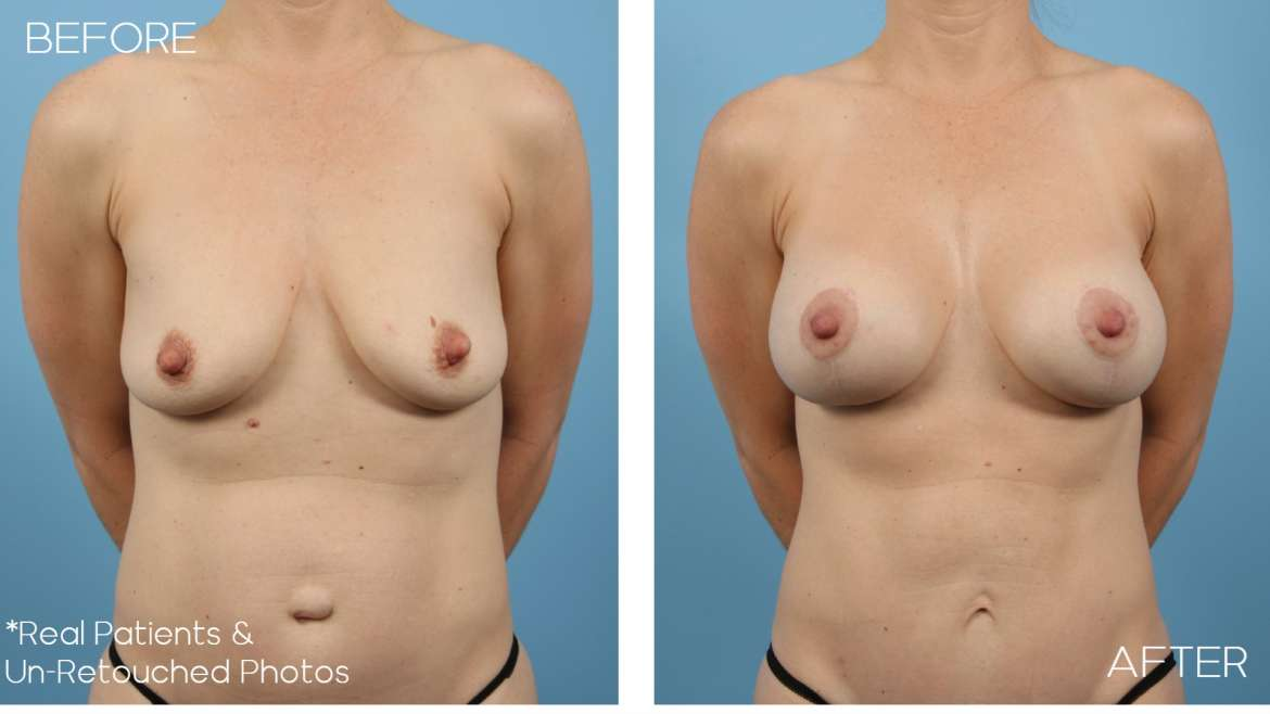 Age 42 Female Breast Lift Case 2049 Before/After