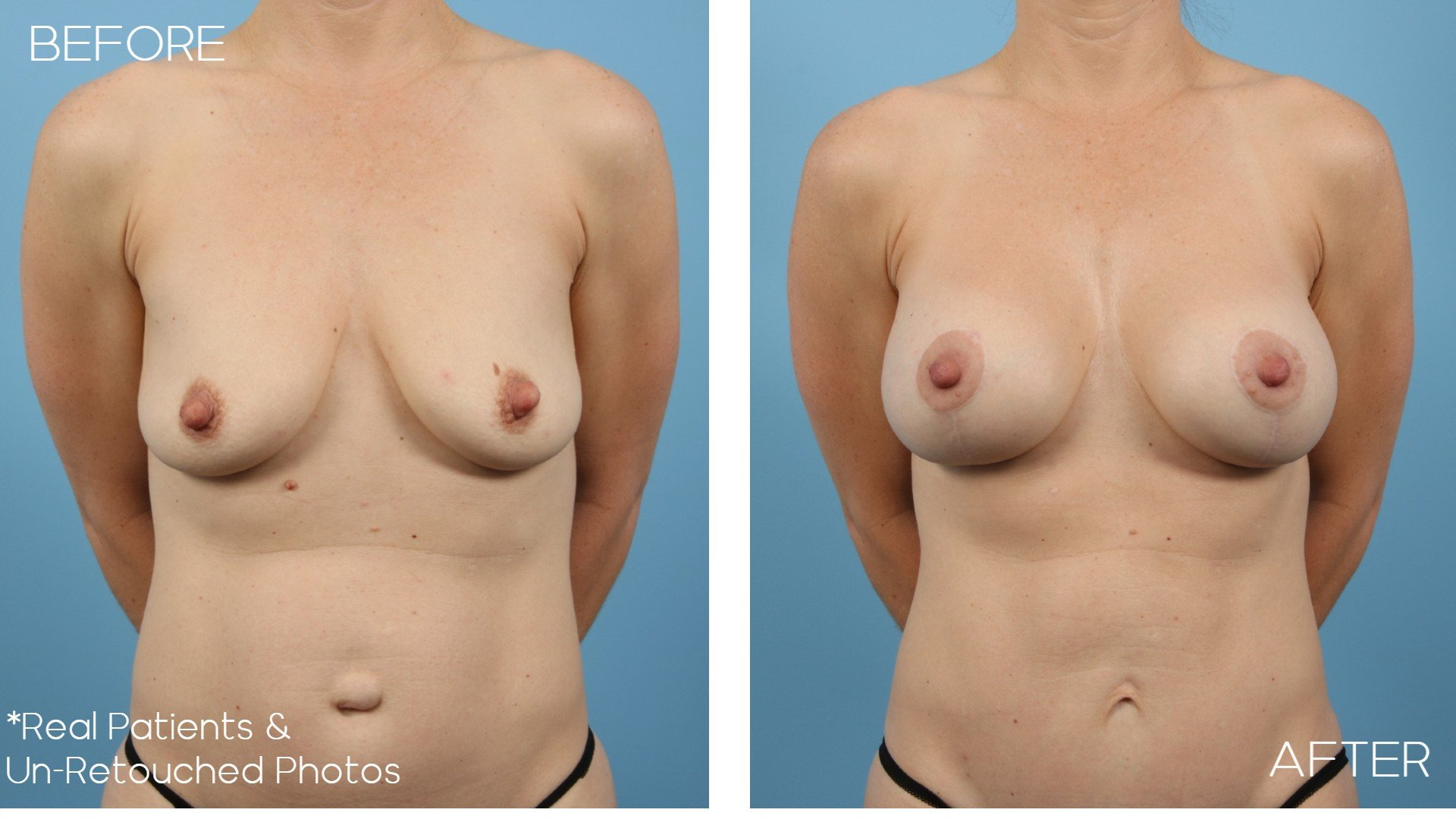 Case-2049-Breast-Lift-Front-Before-and-After