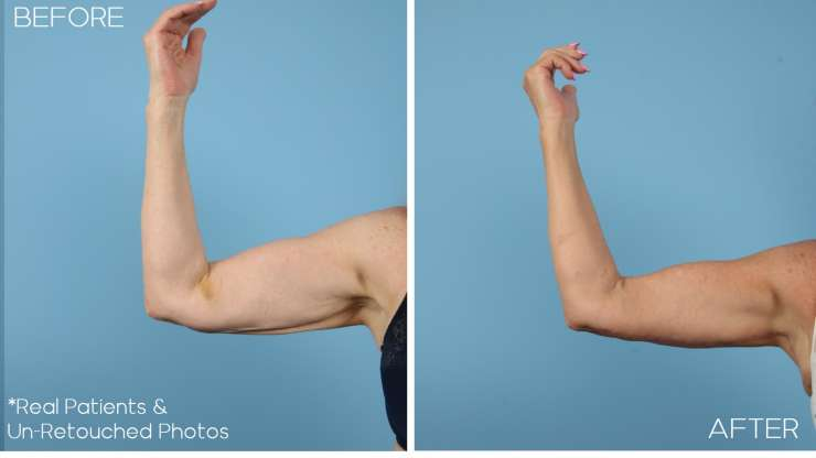 Age 70 Female Arm Lift Case 2066 Before/After