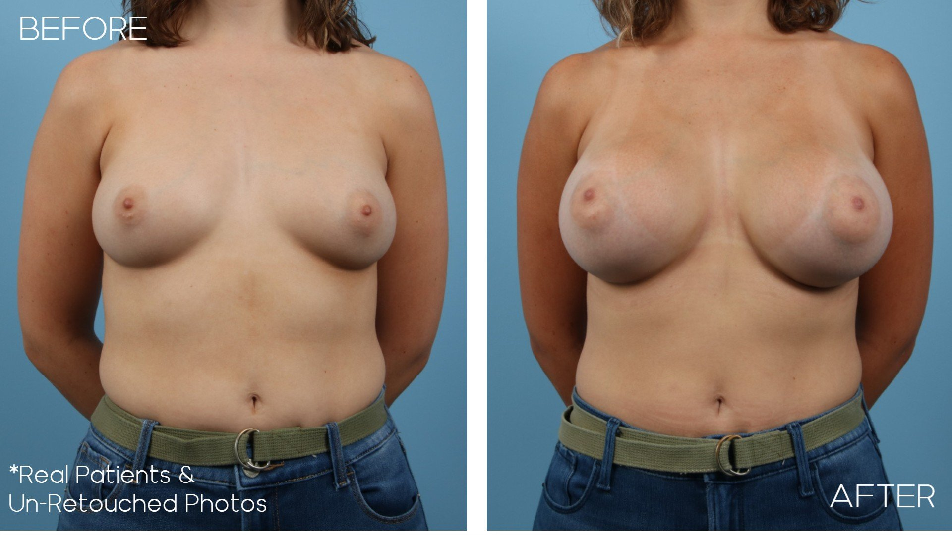 Case-2082-Front-Breast-Aug-Before-and-After