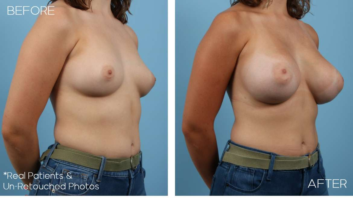 Age 22 Female Breast Augmentation Case 2082 Before/After