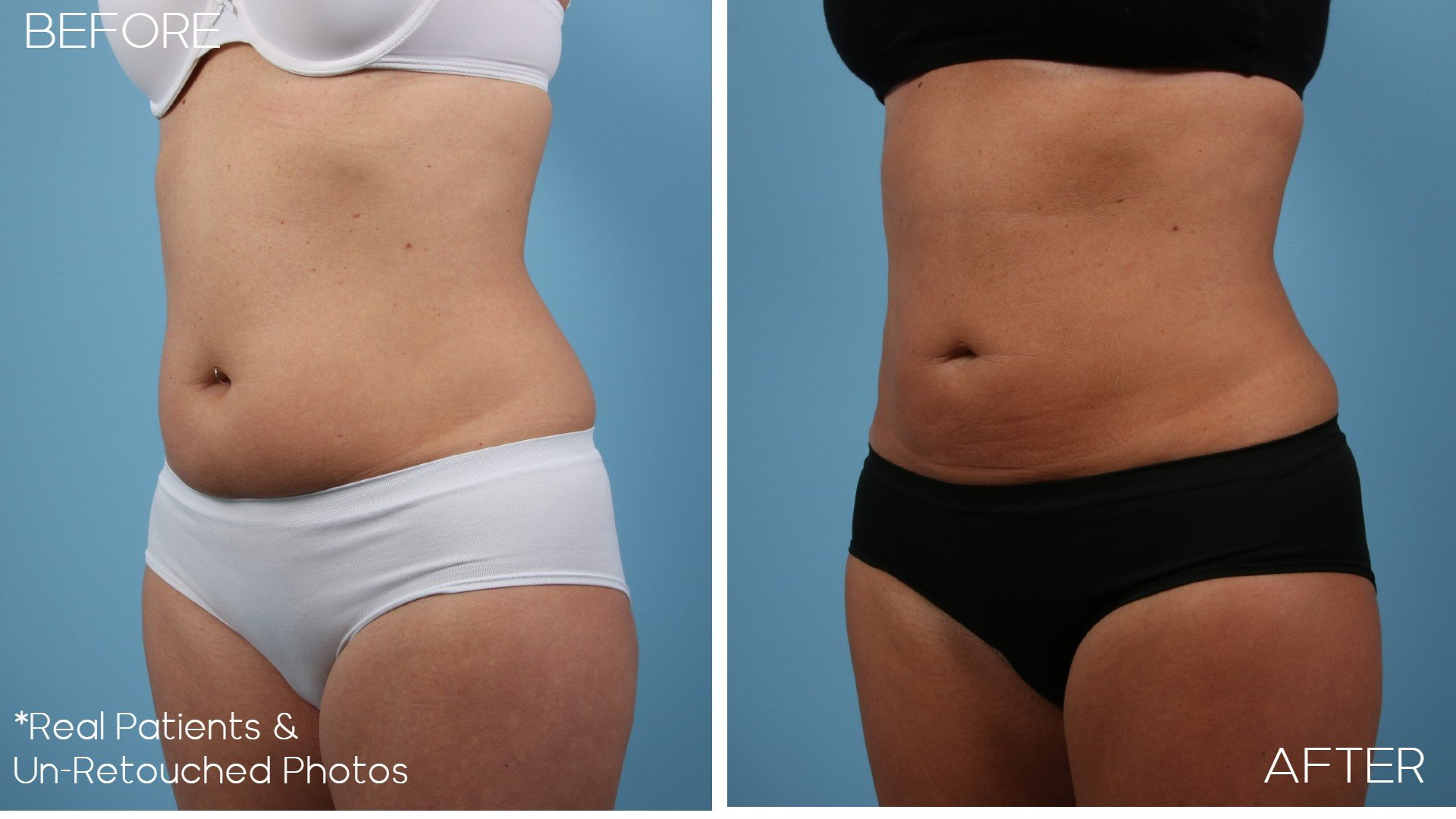 Case-2263-Oblique-Before-and-After