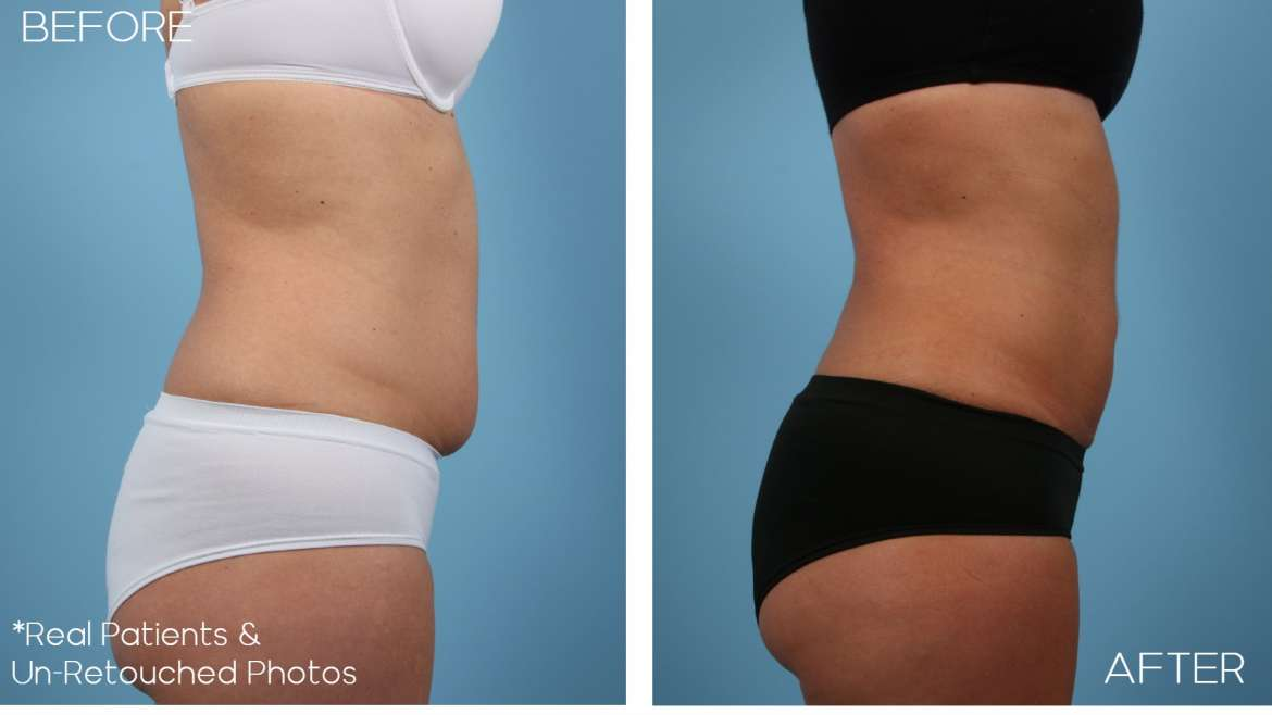 Age 44 Female Liposuction Case 2263 Before/After