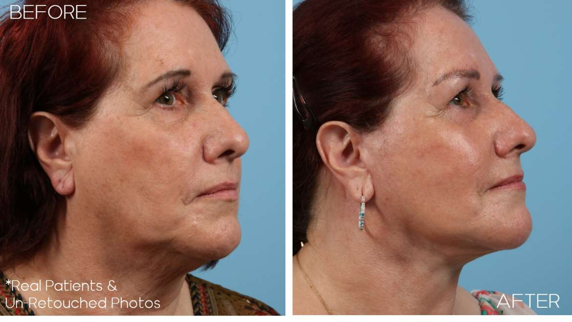 Age 62 Female Facelift, Neck Lift, Lower Eyelid Lift(Blepharoplasty) Case 2297 Before/After