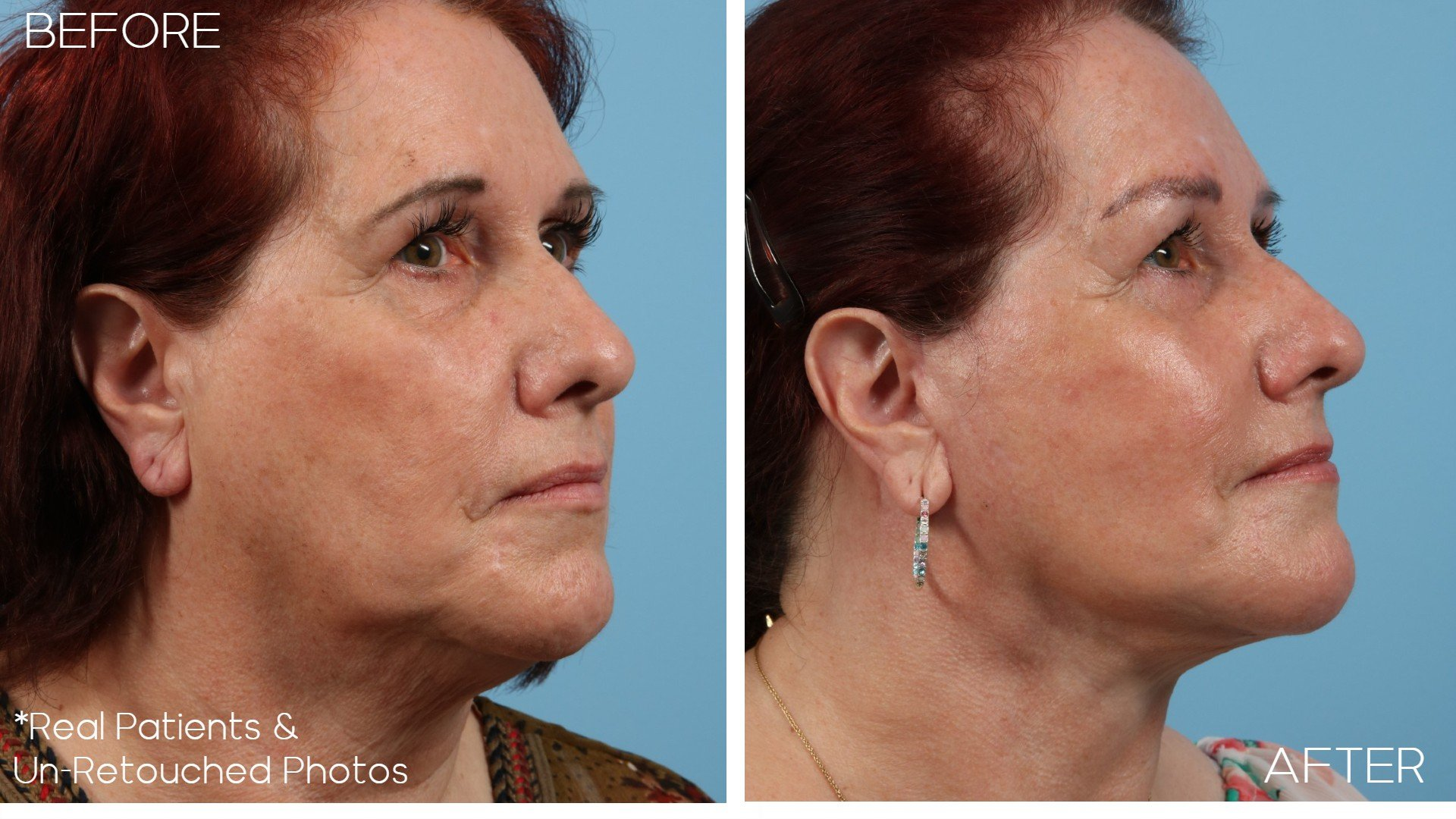 Case-2297-Facelift-Before-and-After