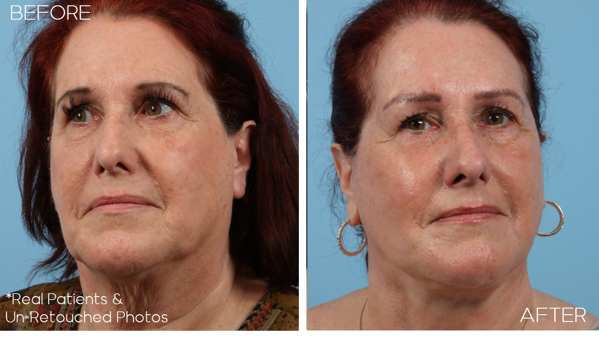 Case-2297-Facelift-Front-Before-and-After